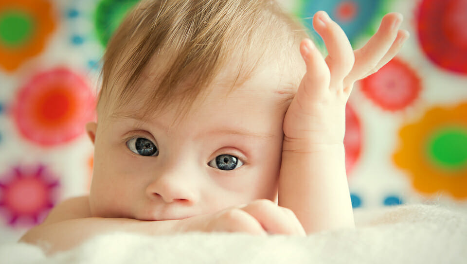 The ongoing destruction of babies with Down syndrome is changing the face of society