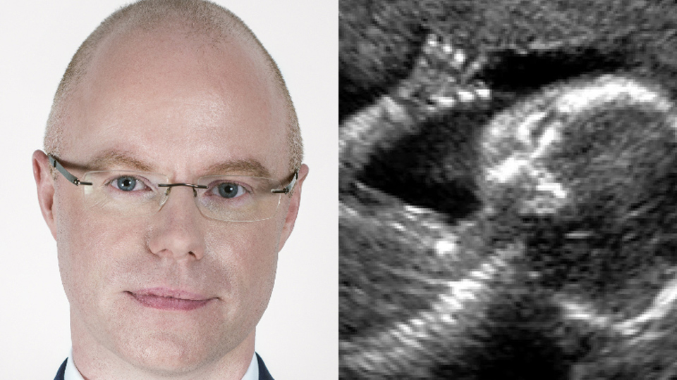 In opposition, Donnelly said the abortion misdiagnosis case in Holles St should be investigated. What's his delay now?