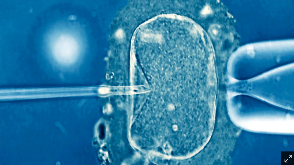 A class action suit against an Australian IVF provider is a reminder that IVF is a huge industry